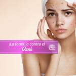 La solución para el acne